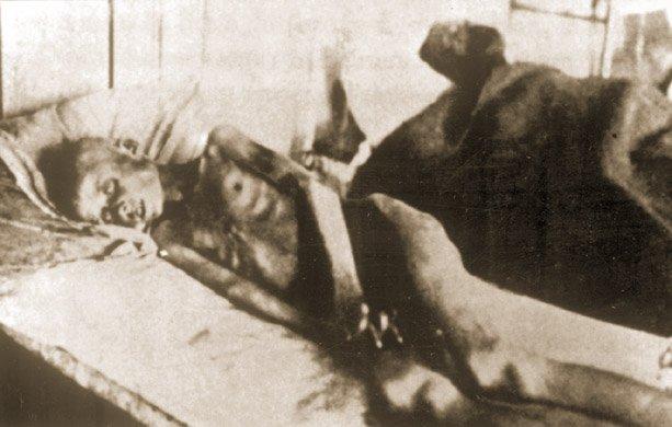 Umierająca zgłodu kobieta