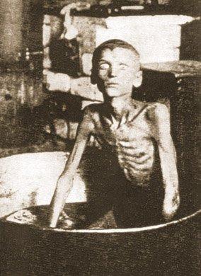 Głodujący chłopiec